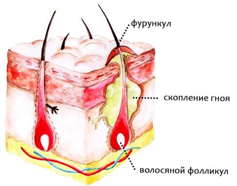 Фурункул: как проявляется, симптомы и возможные осложнения фурункулёза