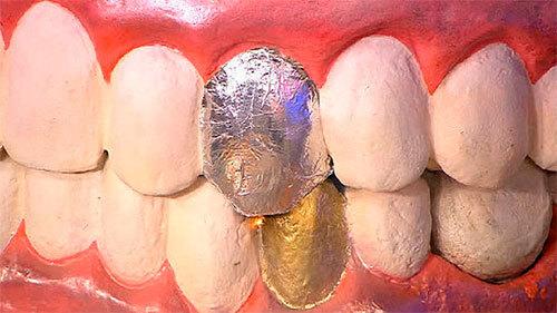 Гальваноз полости рта: причины возникновения, сопутствующие симптомы, тактика лечения и профилактика