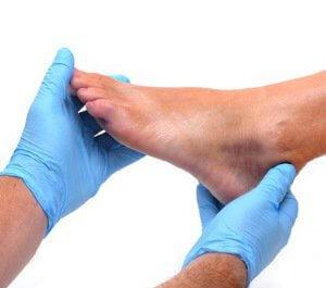 Гангренозная пиодермия на руках и ногах: факторы риска развития, типичные симптомы, диагностика и методы терапии