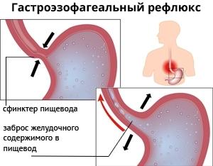 Гастроэзофагеальный рефлюкс — симптомы у детей и взрослых, лечение