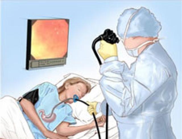 Гастроскопия — подготовка, показания к эзофагогастродуоденоскопии и противопоказания