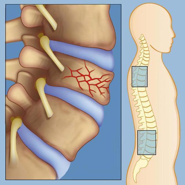 Гемангиома позвоночника: причины заболевания, размеры опухолей, лечебные мероприятия и возможные осложнения