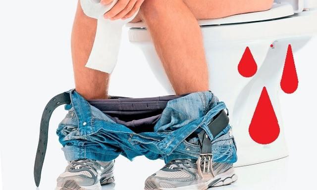 Геморроидальное кровотечение: причины появления, первая помощь, диагностика и методы терапии