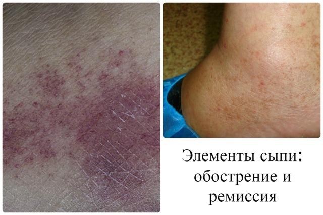 Гемосидероз кожи ног, тела: описание болезни Шамберга, диагностика, традиционные и народные методы терапии