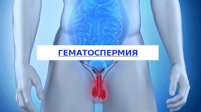 Гемоспермия: причины, симптомы, алгоритм обследования и методы лечения