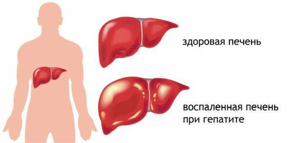 Гепатит А: что это такое и как передается, симптомы болезни Боткина, диагностика и лечение