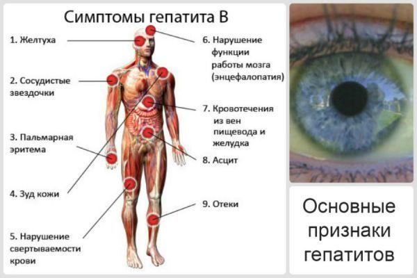Гепатиты: симптомы, классификация, причины, пути заражения, диагностика