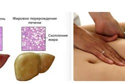 Гепатоз: причины возникновения, характерные симптомы, народные методы лечения и правила питания