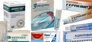 Герпес: виды, клинические симптомы и методы лечения народными средствами