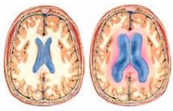 Гидроцефалия (водянка головного мозга) у новорожденных – симптомы и признаки