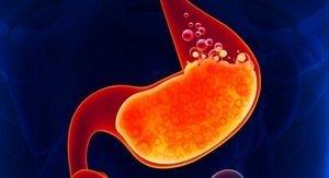 Гиперацидный гастрит: что это такое и как проявляется, эффективные методы лечения медикаментами и народными средствами