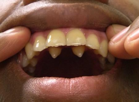 Гипердонтия, полиодонтия, гипердентия: причины аномалии числа зубов, методы лечения и возможные осложнения