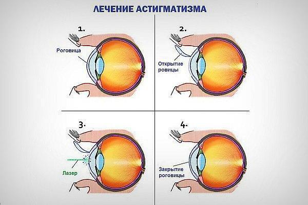 Гиперметропический астигматизм: причины, диагностика и лечение