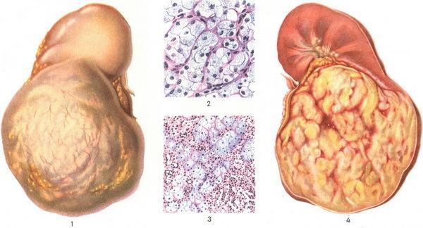 Симптомы и лечение аденомы почки
