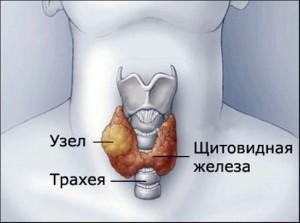 Гиперплазия щитовидной железы: степени патологии, первые признаки и методики лечения