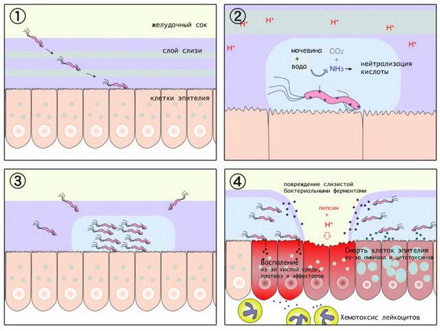 Гипертрофический гастрит желудка: причины возникновения, сопутствующие симптомы, диета и принципы лечения