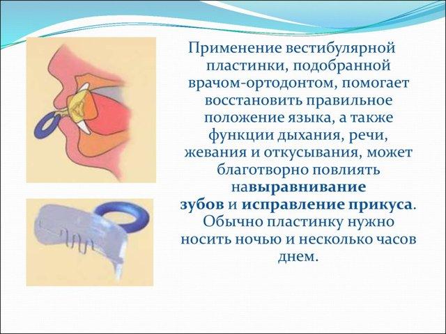 Глубокий прикус: описание патологии, какие проблемы вызывает, способы лечения