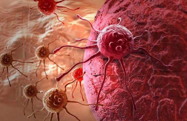 Гормонозависимый рак молочной железы: стадии развития, клинические проявления, методы лечения и прогноз