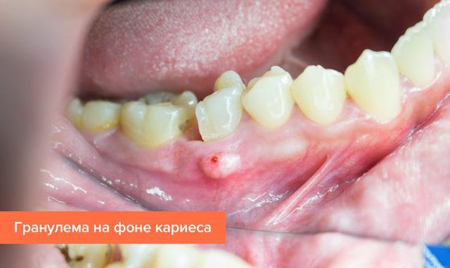 Гранулема зуба: стадии развития заболевания, основные признаки, особенности лечения