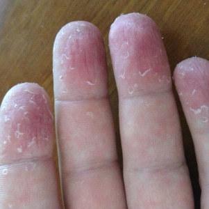 Грубая кожа на локтях и коленях: провоцирующие факторы, препараты и народные рецепты, профилактические мероприятия