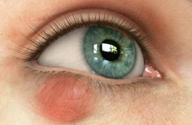Халязион: что это такое и почему появляется, фото патологии, методы лечения и профилактики