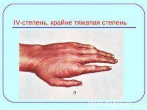 Химический ожог кожи: как правильно оказать первую помощь