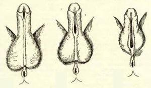 Хирургическая коррекция гипоспадии у детей: показания, осложнения и виды