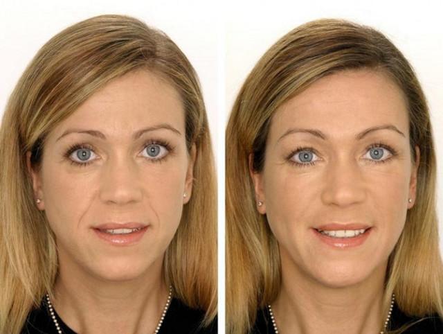 Хирургический аквалифтинг лица: преимущества методики, противопоказания, фото до и после