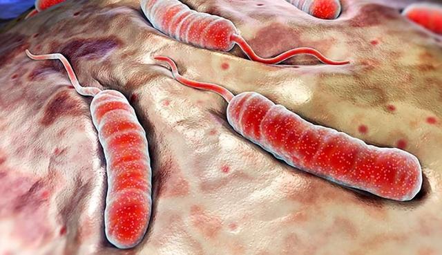 Холера (острая кишечная): виды, что является возбудителем и как лечить?