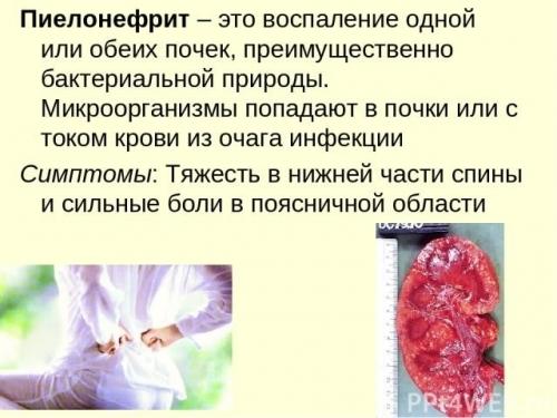 Хронический пиелонефрит (инфекционно-воспалительный процесс): как проявляется, какие можно принимать антибиотики