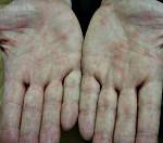 Иерсиниоз: что это такое, симптомы и лечение заболевания, фото сыпи