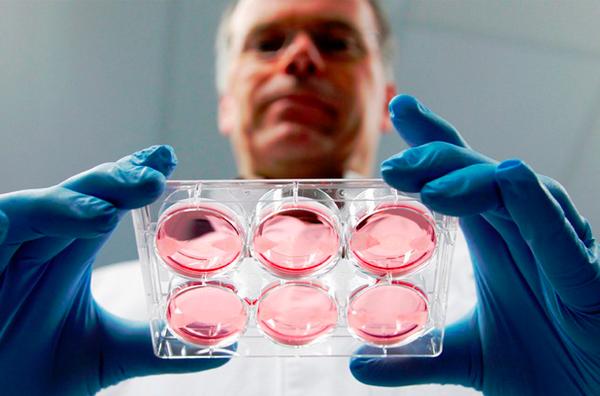ИКСИ-оплодотворение: что это такое, основные различия репродуктивных технологий, показания и этапы проведения