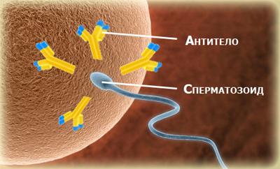Иммунологическое бесплодие у мужчин и женщин: что это такое, причины и лечение
