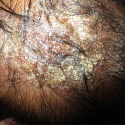 Импетиго: симптомы, причины, методы диагностики и лечения