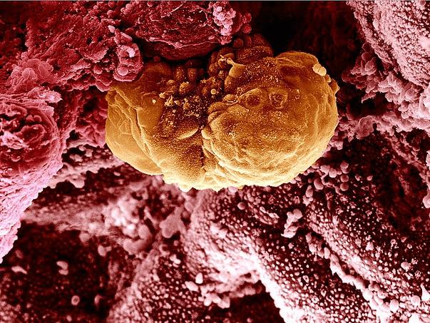 Имплантация эмбриона после ЭКО: как повысить шансы удачной беременности, характерные признаки, причины отсутствия или несостоятельности имплантации