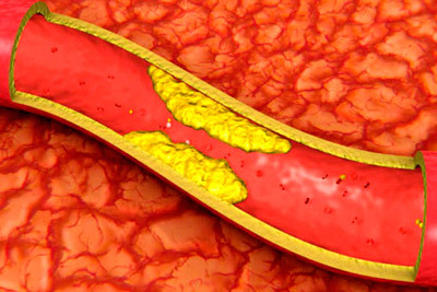 Инфаркт на ногах: симптомы, причины и последствия