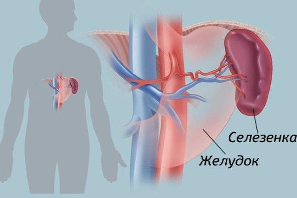 Инфаркт (некроз) селезенки: причины патологии, сопутствующие симптомы, методы лечения и прогноз