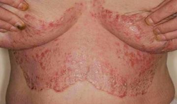 Интертригинозный псориаз складок кожи: причины развития заболевания, диагностика, способы терапии, прогноз врачей