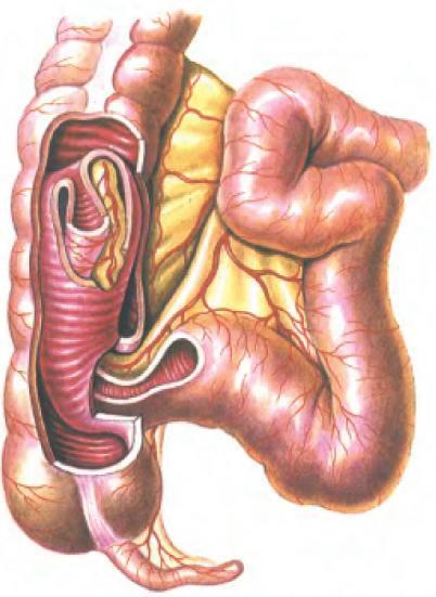 Инвагинация кишечника у детей: причины и симптомы патологии, методы лечения и последствия