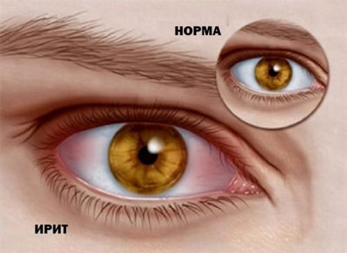 Ирит глаза: причины воспаления, симптомы и методы лечения у детей и взрослых