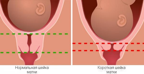 Истмико-цервикальная недостаточность во время беременности: описание патологии, методы диагностики и лечения, как сохранить беременность