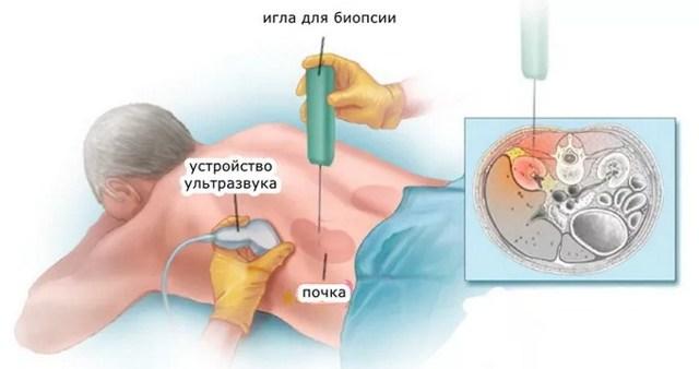 Биопсия почки – все, что нужно знать об исследовании. Биопсия почек: зачем и как проводится