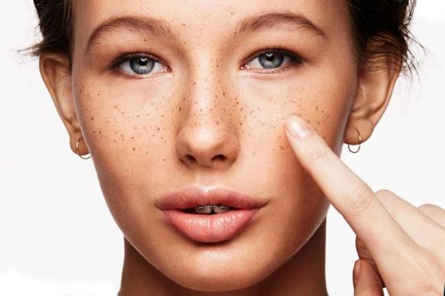 Как избавиться от веснушек: кремы и средства от гиперпигментации кожи лица
