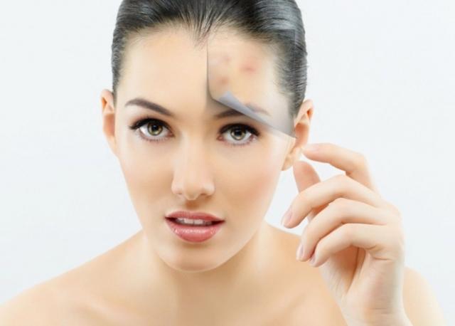 Как избавиться от жирного блеска на лице: эффективные средства, рецепты масок, косметологические методы, советы по уходу