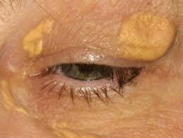 Как избавиться от жировика на лице: самые эффективные и безопасные методы