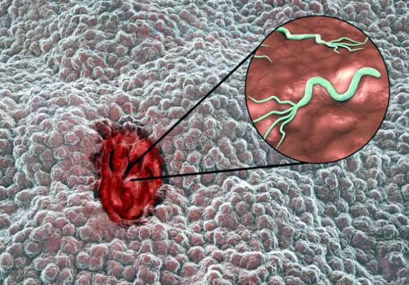 Как лечить хеликобактер пилори и заболевания двенадцатиперстной кишки?