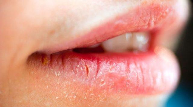 Как лечить хейлит на губах: эффективные препараты, народные методы, профилактические мероприятия