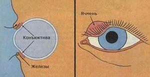 Как лечить ячмень на глазу в домашних условиях: самые эффективные способы