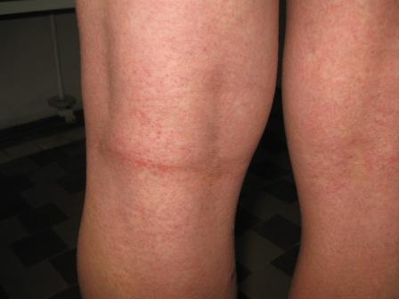Как облегчить состояние при гиперплазии?