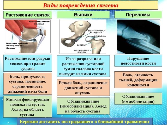 Как определить: ушиб или перелом